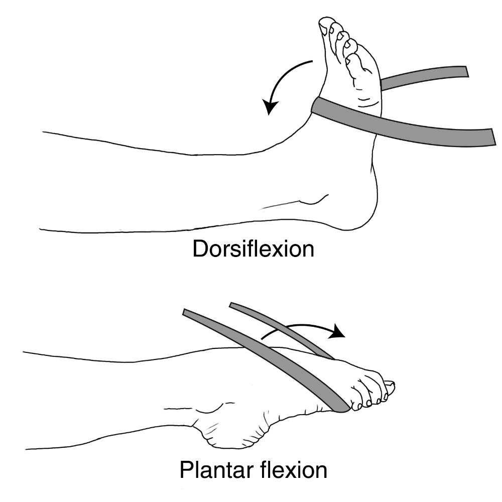 """Flexie dorsală (dorsiflexie) a piciorului (""""drop foot"""")"""