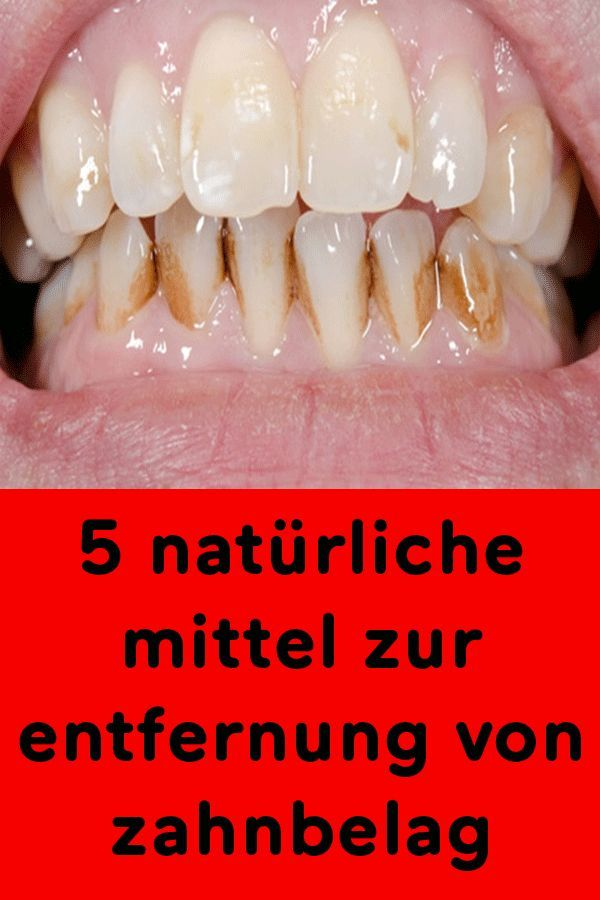 Mittel Gegen Gelbe Zähne