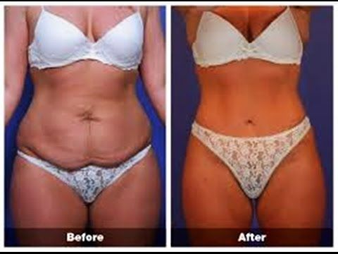 How To Tighten Up Loose Skin After Weight Loss Weight Loss In 2019