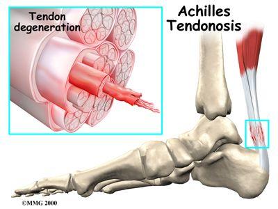 Blog sobre traumatología y cirugía ortopédica, deportiva y del ...