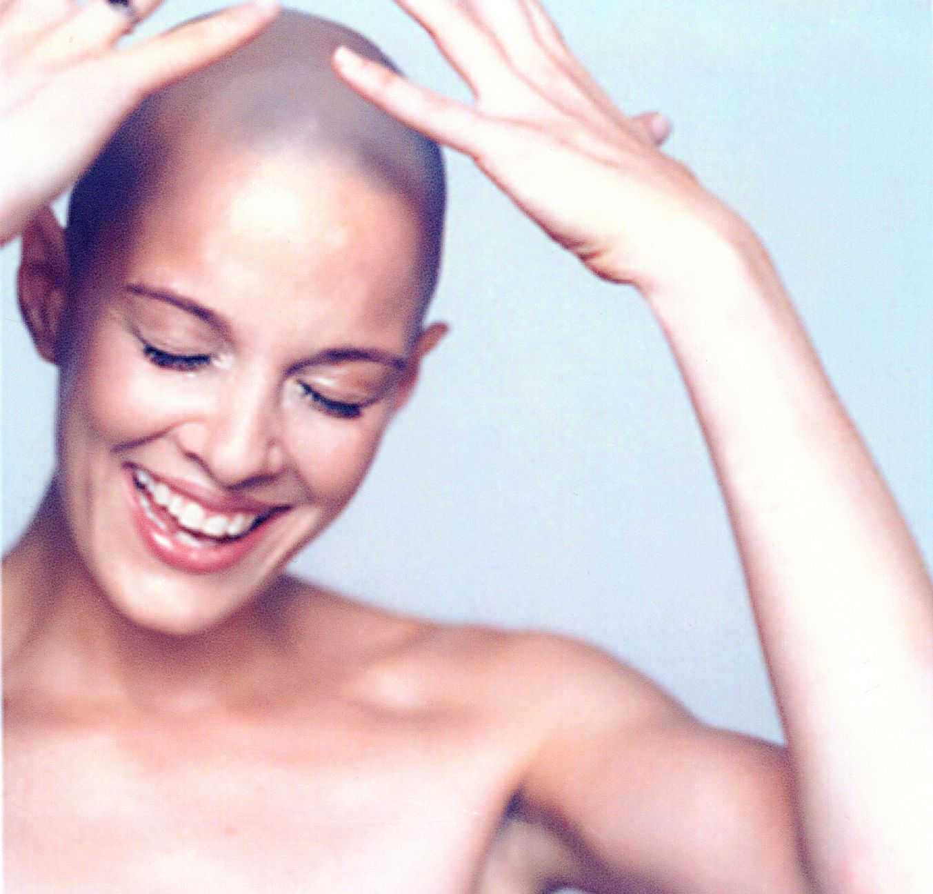 How I Lost My Hair and Found Myself Sharon Blynn (With