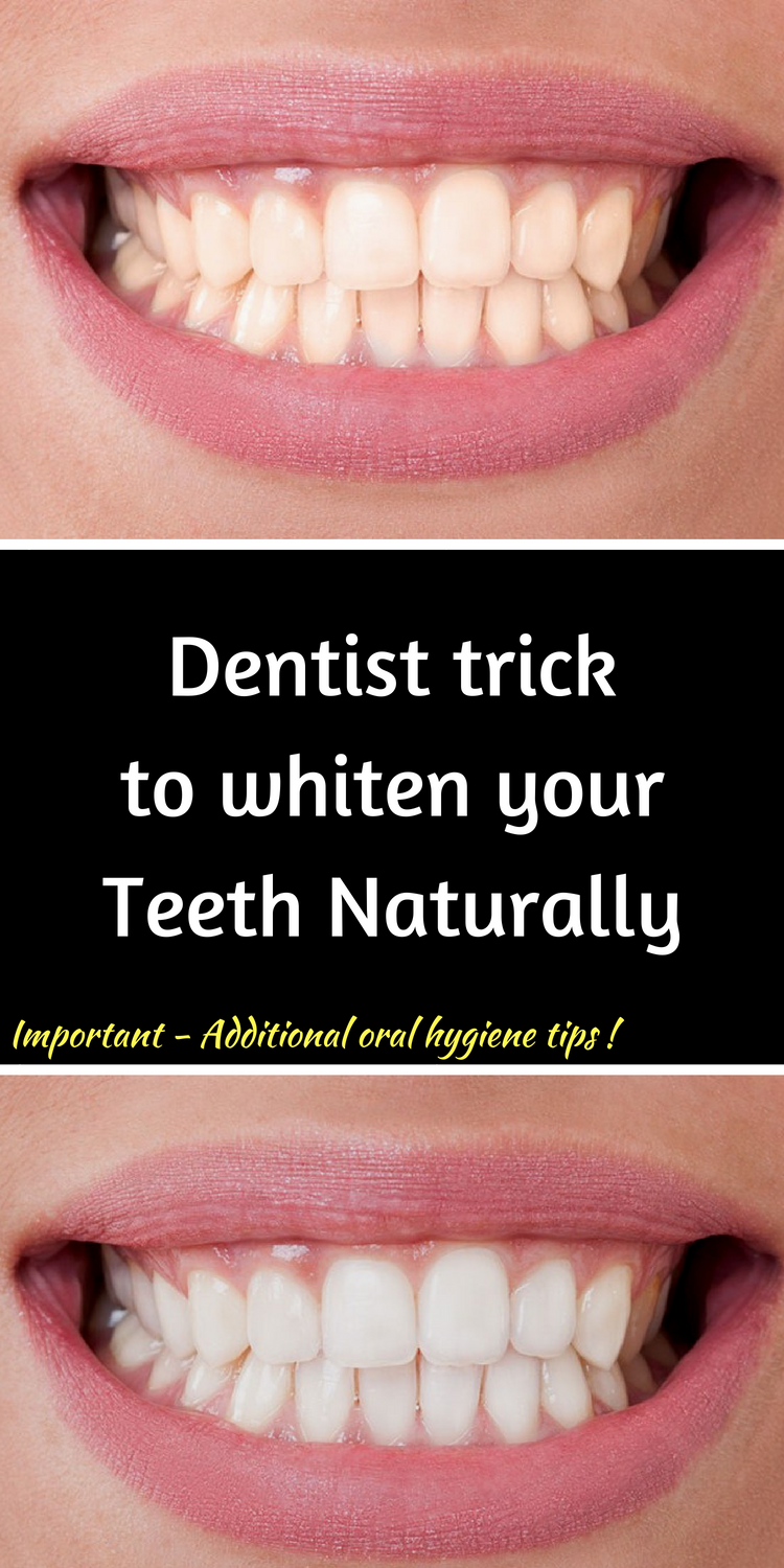 Remove Plaque And Tartar And Whiten Your Teeth With This Diy