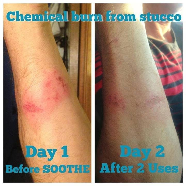 Chemical Burn Soothed With Soothe Rodan And Fields Soothe Chemical Burn Rodan And Fields