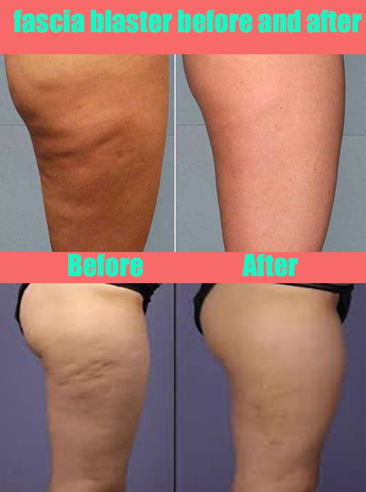 traitement anti cellulite laser