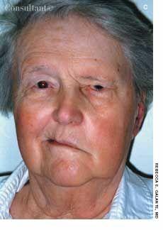 ramsay hunt syndrome - Buscar con Google | Neurology. | Pinterest ...
