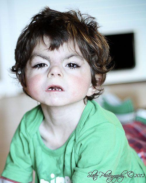 his is Vinny. He has Cornelia de Lange Syndrome (CdLS). Please go ...