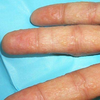 5 Major Causes Of Diabetes Onset Eczema Eczema Remedies