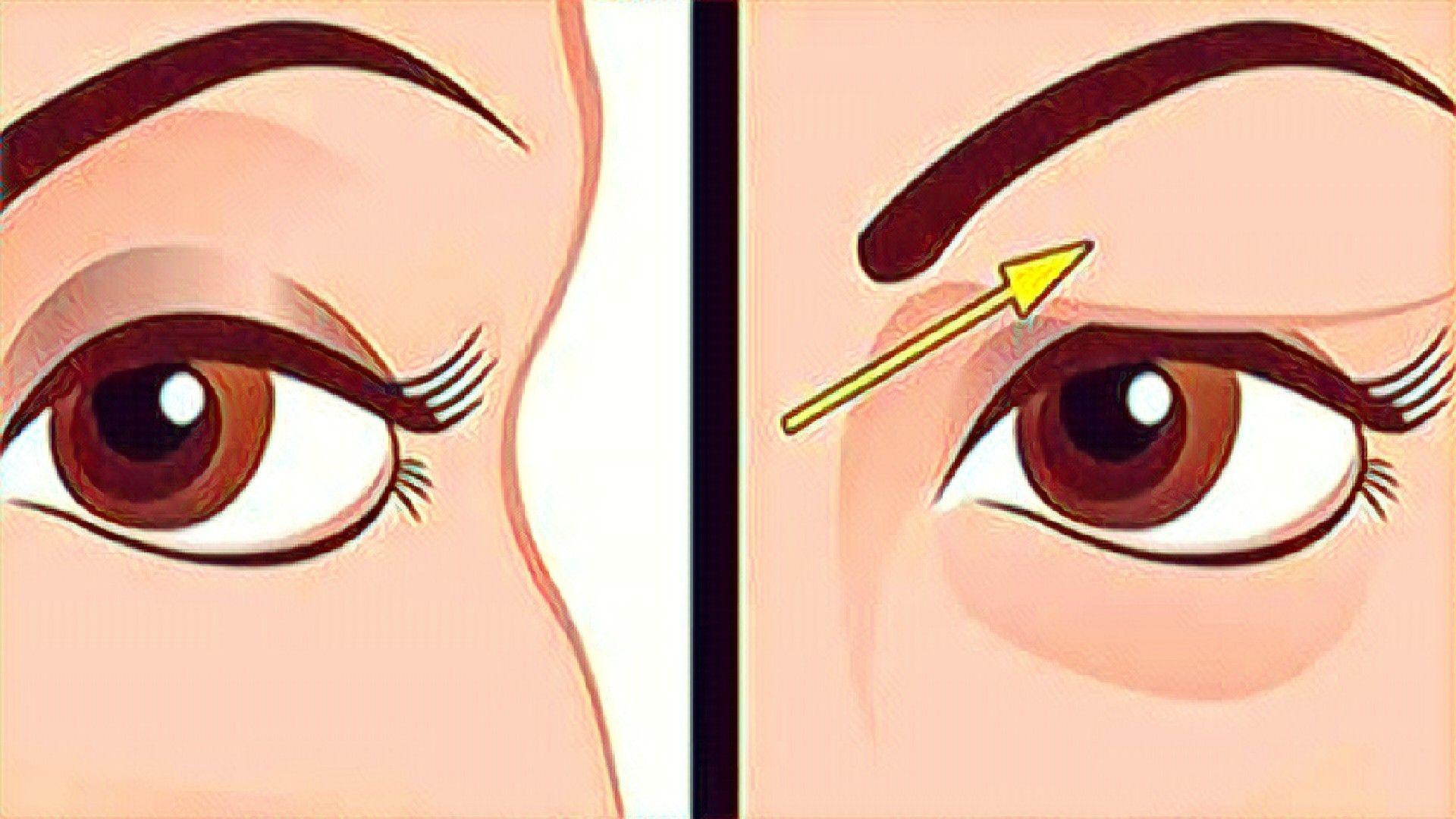 Elimina Los Párpados Con Caídos Con Un Remedio Casero Parpados Maquillaje Ojos Caidos Parpados Hinchados