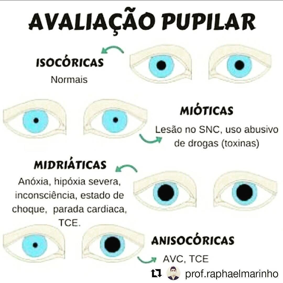 Avaliação pupilar | Enfermagem | Pinterest | Medicina, Anatomía y ...