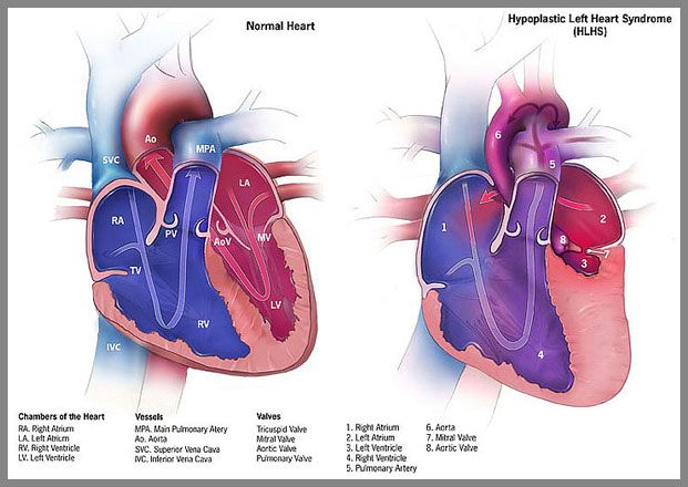 Hypoplastic Left Heart Syndrome Hlhs Is A Rare Congenital Heart