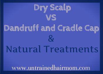 Dry Scalp Vs Dandruff Or Cradle Cap Natural Treatments Dry Scalp Vs Dandruff Dry Scalp Dry Scalp Treatment