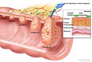 colonoscopia ve la prostata
