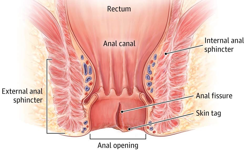Something is. anal fissures constant pain