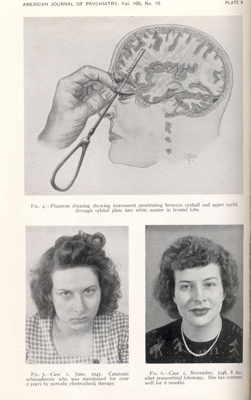 In alto: istruzioni per l\'esecuzione di una lobotomia transorbitale ...