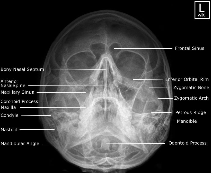Facial Bones - Occipito Mental (OM) | Radiology, Facial ...