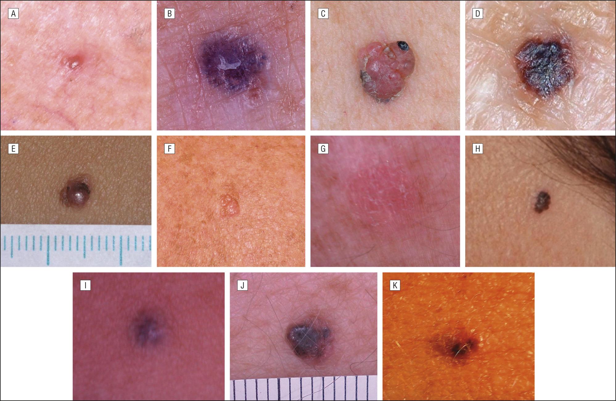 how to tell if you have nodular melanoma