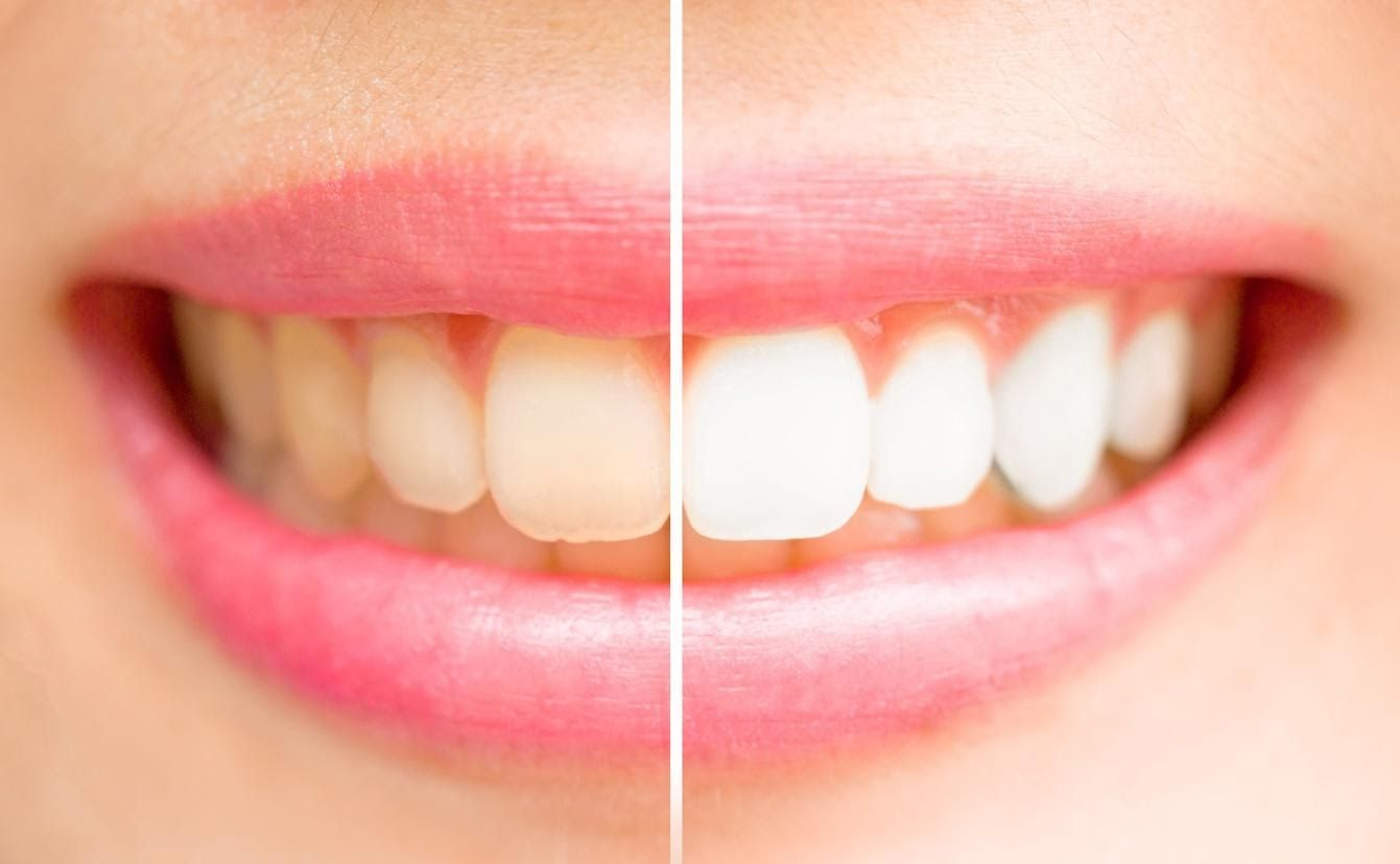 Improve Your Smile With These Teeth Whitening Tips