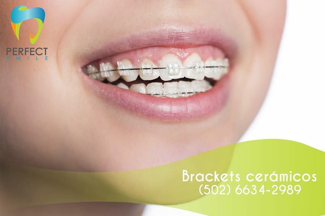 Para ti que te gusta ser discreto ;) Ortodoncia con brackets cerámicos con el 30% de descuento adquiérelos con un enganche de Q1500.- Agenda tu cita al 6634-2989! #dentista #Dentistry #dentistaguatemala #gt #guate #guate #Dentist #dentistagt by perfectsmilegt Our General Dentistry Page: http://www.myimagedental.com/services/general-dentistry/ Google My Business: https://plus.google.com/ImageDentalStockton/about Our Yelp Page: http://www.yelp.com/biz/image-dental-stockton-3 Our Facebook Page…