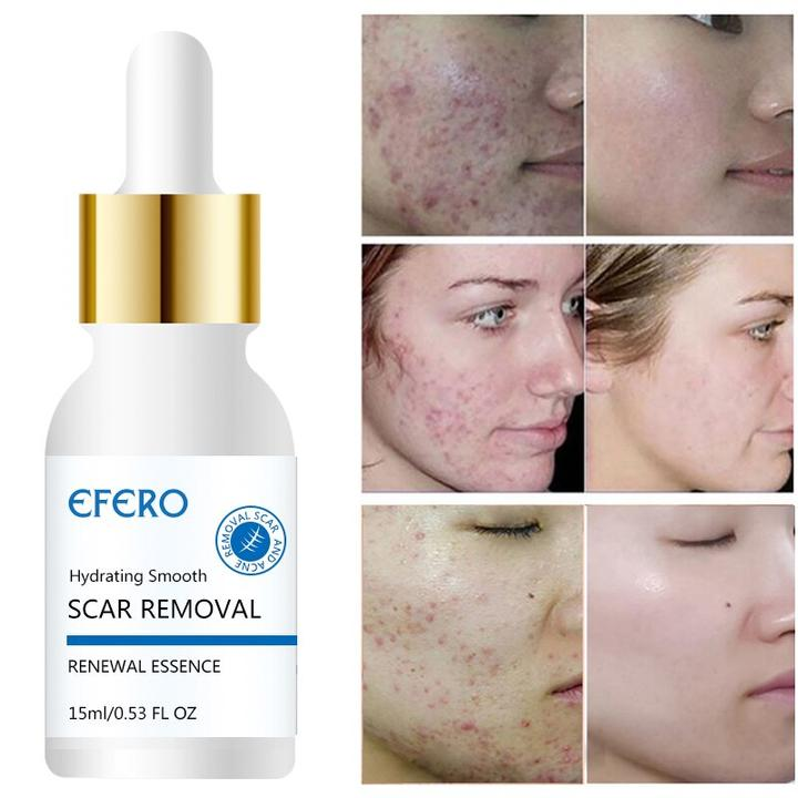 Pin By Roxy Aka Rxy On Makeup Acne Scar Removal Acne Serum Scar Removal