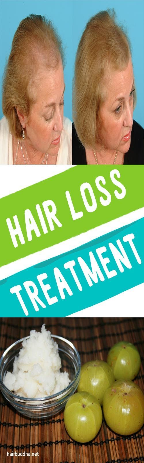 How to Control Hair fall & Stop Hair loss at Home – Home ...