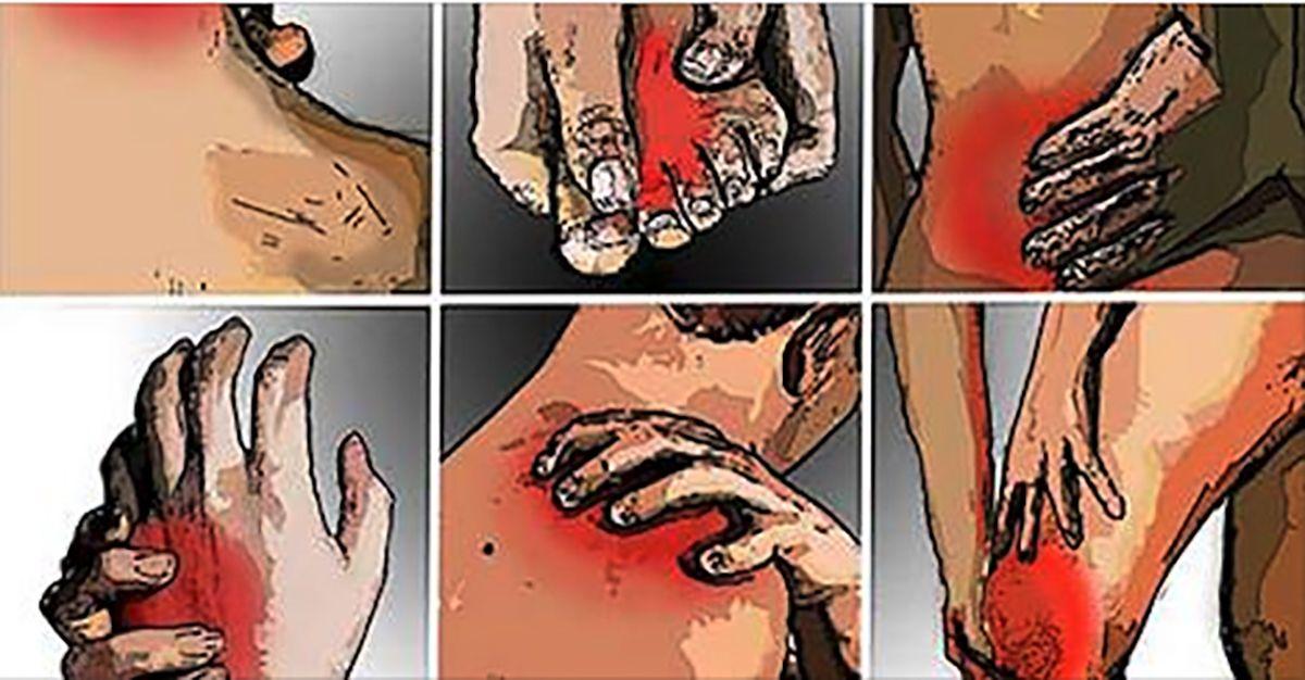 mi kezelik az ízületi fájdalmakat