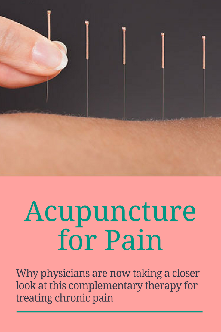 Acupuncture to Relief Pains Ideas | Acupuncture ...