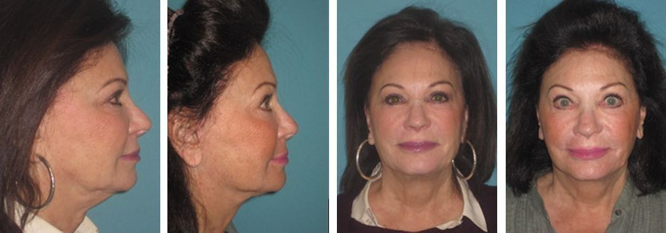 Twin Chin Elimination Treatments Prevent And Get Rid Of A