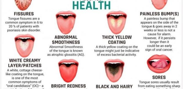 What Does Your Tongue Says About Your Health Tongue Health