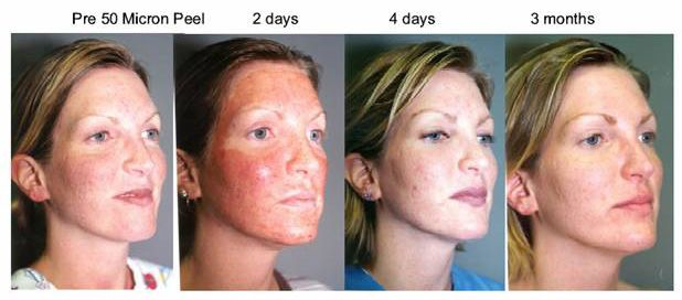 Laser Treatments On Pinterest Plastic Surgery Even Skin