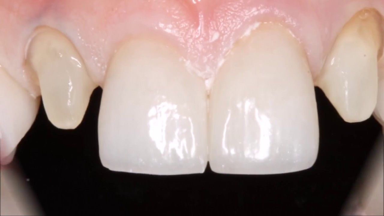Efficient And Accurate Anterior Crown Preparation Preparation Crown Efficiency