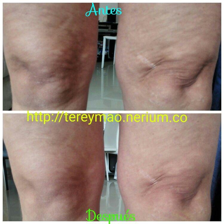 Resultados a los dos meses de uso continuo con la Crema Reafirmante ...
