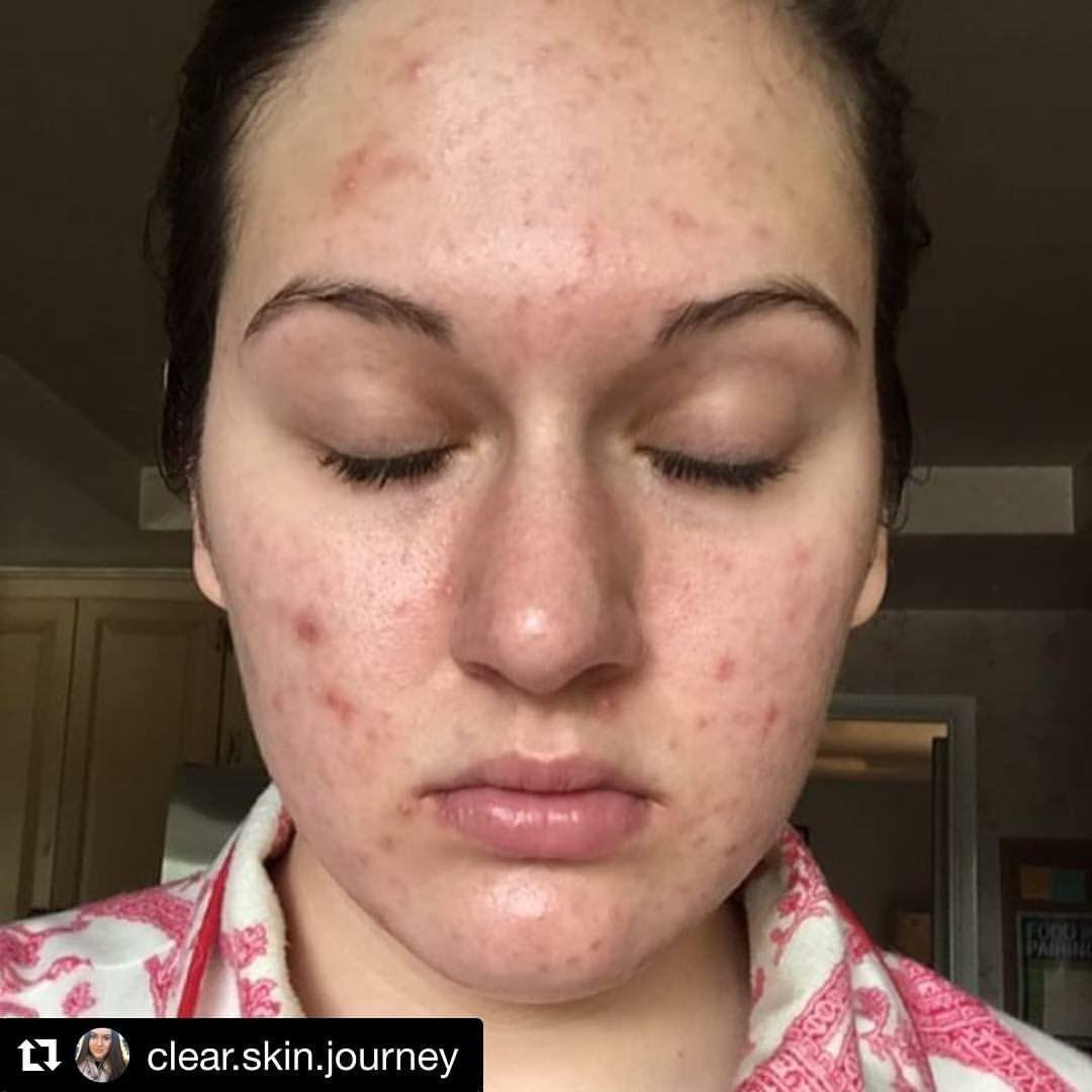 Pin by Tamara\u0027s Skin Care Clinic in Yorba Linda on Acne | Pinterest