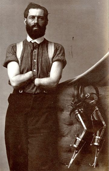 samuel h decker devised his own prosthetics after