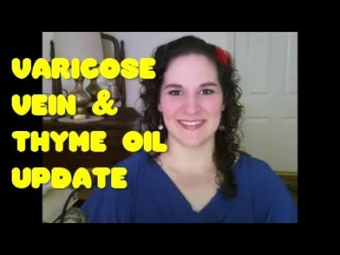 Update: How Thyme Oil and DMSO are Healing My Varicose Veins