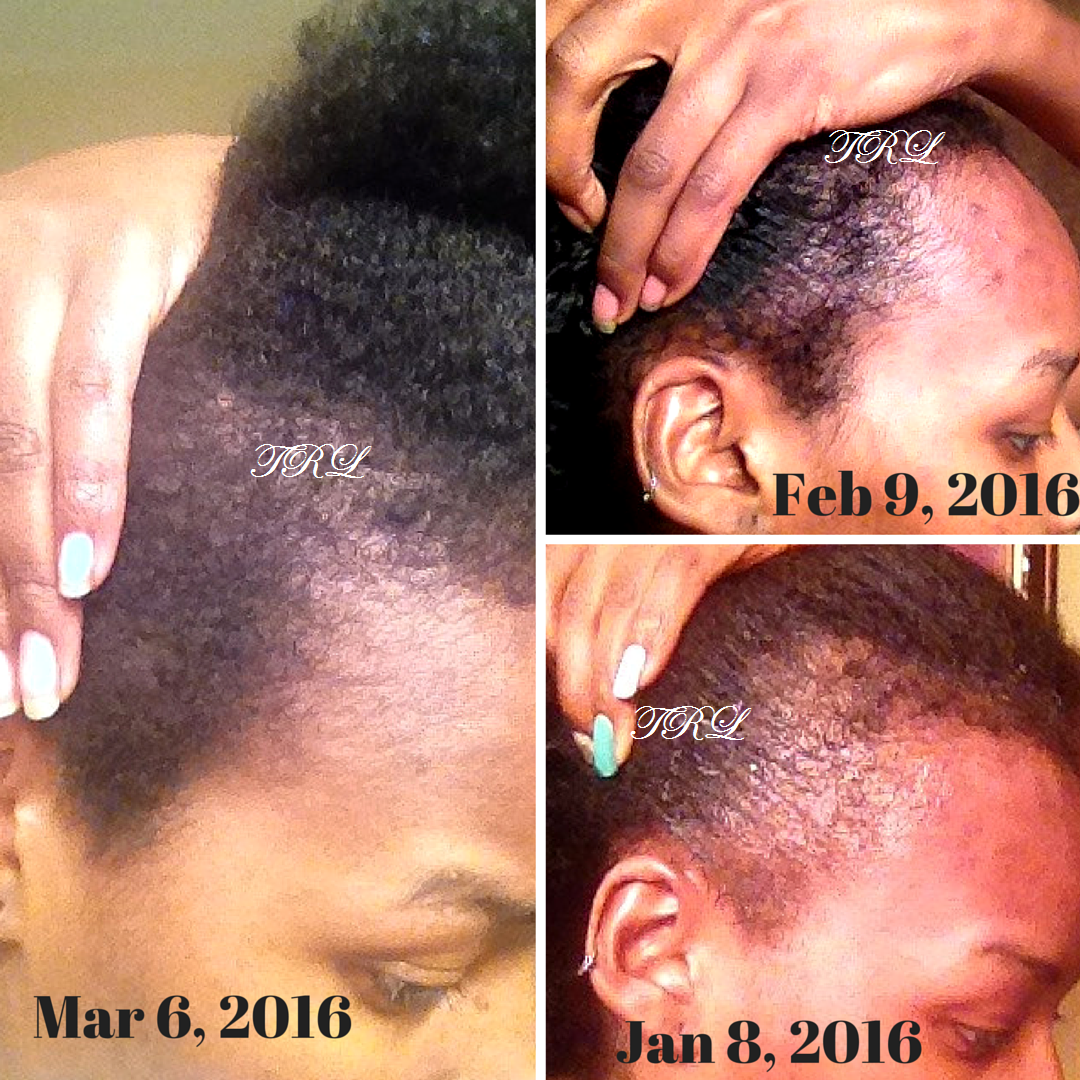 Easy And Quick Way To Regrow Your Hair Edges And Hair Line Using - Edges hair
