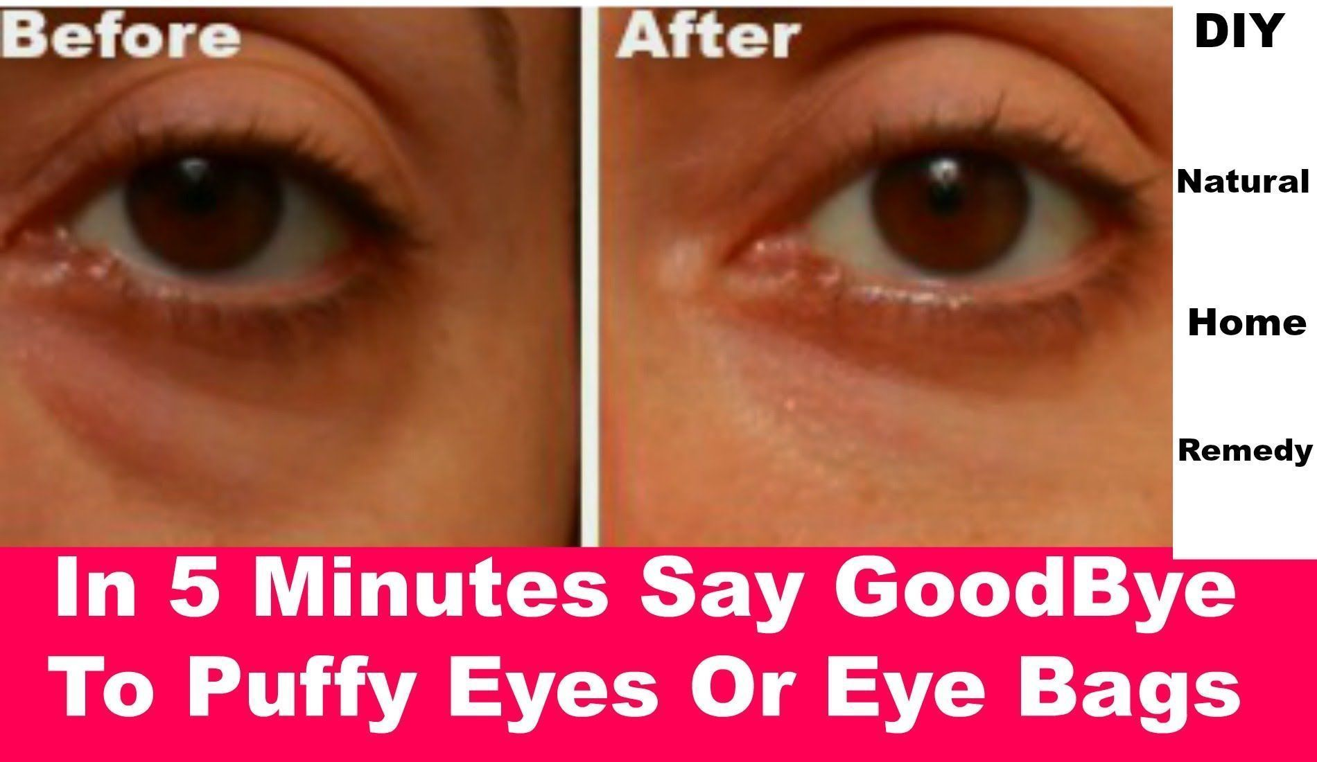In 5 Minutes Make Your Under Eye Bags Disappear How To Reduce Puffy E Homemadefacemasks Poresonnose Facecreamforw Nose Pores Eye Bags Bumps Under Eyes
