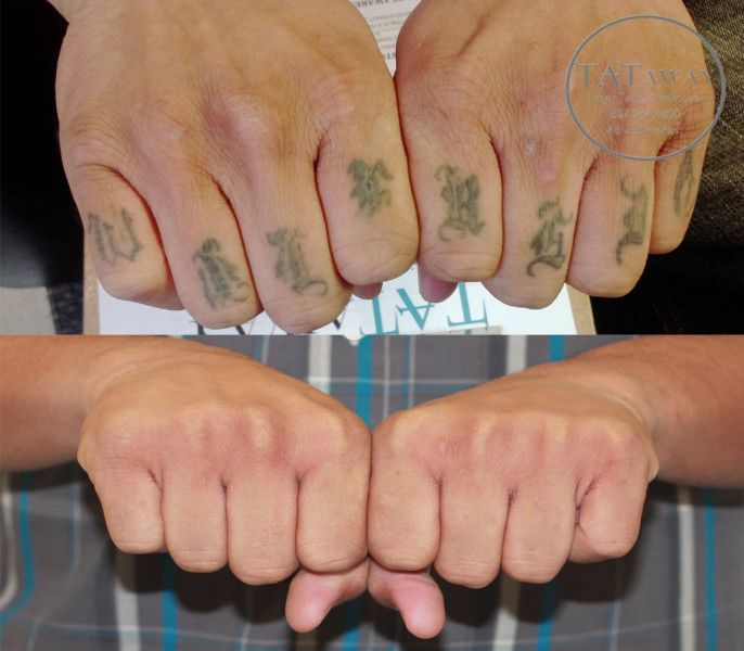 How the Technology of Tattoo Removal Has Changed – Share – How To