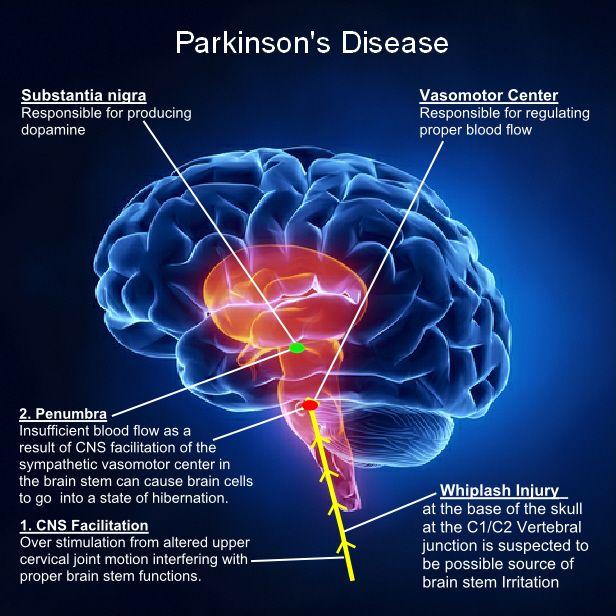 Pin by Tekk Fusion on Parkinson's Disease | Disorders ...