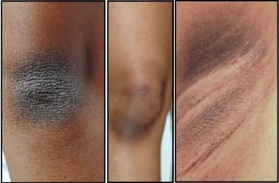My Axilla, Neck And Knees Were Black But Luckily I Did Skin Whitening With This Natural Technique!...