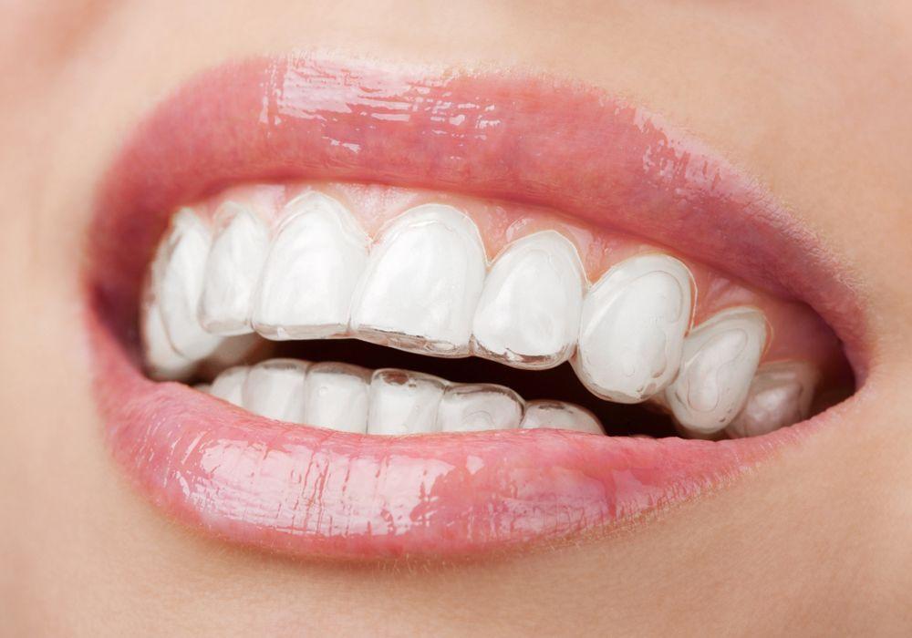 Dental Crowns In Dubai In 2020 Dental Teeth Alignment Teeth Straightening