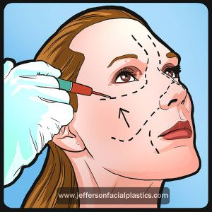 There are several different types of facelift surgeries. From full facelifts, mini lifts, to just plain neck lifts. The difference is how aggressive and how much correction is needed. - See more at: http://www.jeffersonfacialplastics.com/facelift-surgery-philadelphia/#sthash.bLF3mKbZ.dpuf