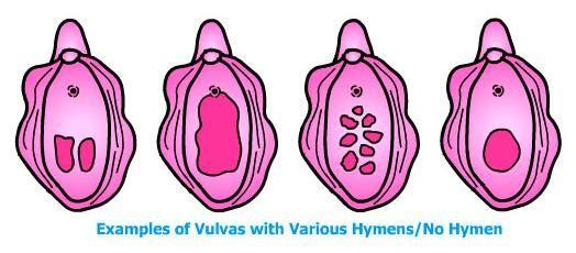Hymen Shapes 3  Menstrual Cup, Self Image, Menstrual-5587