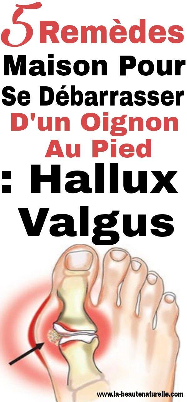 5 remèdes maison pour se débarrasser d'un oignon sur le pied: hallux valgus