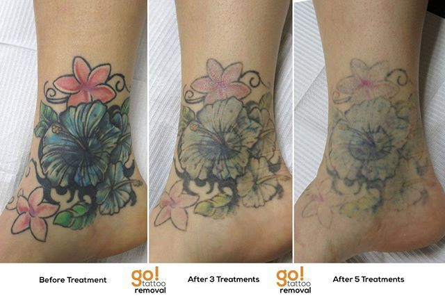 Tattoo Removal Takes Time This Series Shows The Progress Over About 16 Months From When The Client First Started Wi Laser Tattoo Removal Tattoos Tattoo Removal