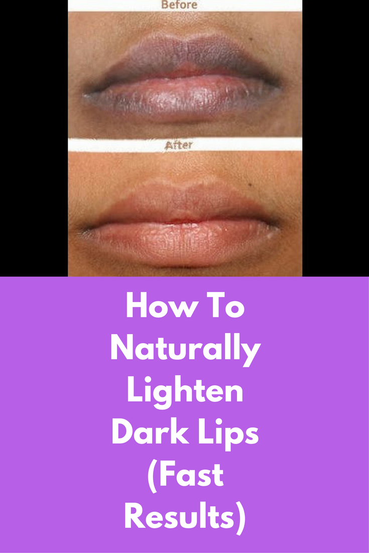 How To Naturally Lighten Dark Lips (Fast Results) First you will