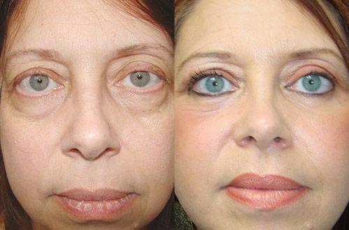 Pin by Blepharoplasty Finder on Blepharoplasty for Women ...