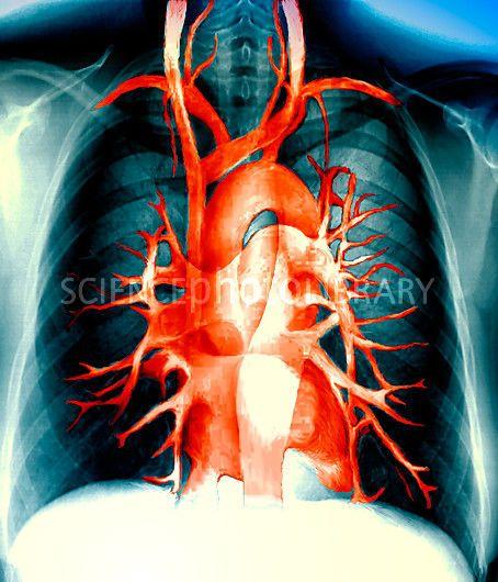 Imagen de los vasos sanguíneos del pecho a partir de una angiografía ...