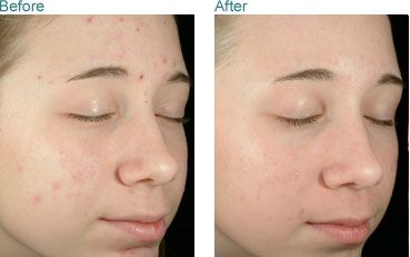 Pin On Today S Skin Treatments