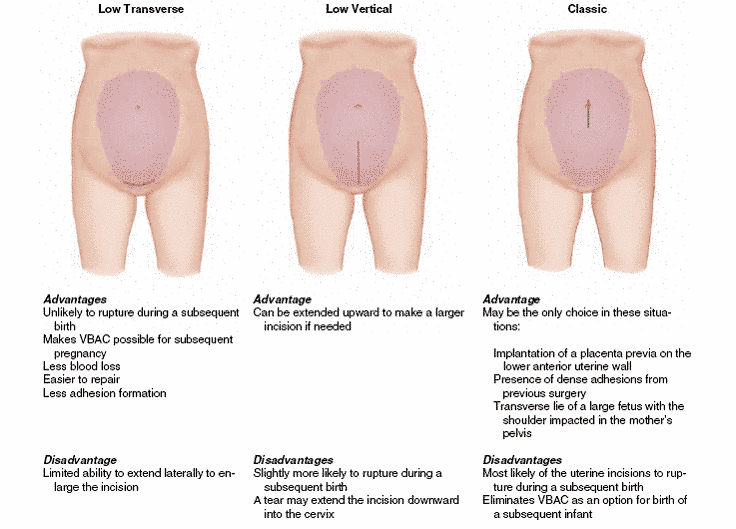 More Pros And Cons Of Various Types Of C Section Incisions C