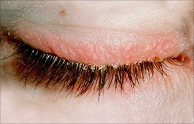 4189d8ae204 The inflammation occurs around the edges of the eyelids and the eyelashes  follicles. This is a very irritating condition it is a medical disorder …
